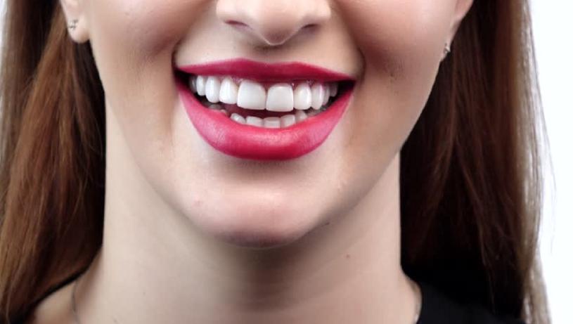 cara memutihkan gigi secara alami 2