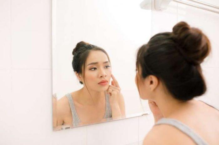 4 Cara Menghilangkan Jerawat Dengan Murah, Aman dan Efektif