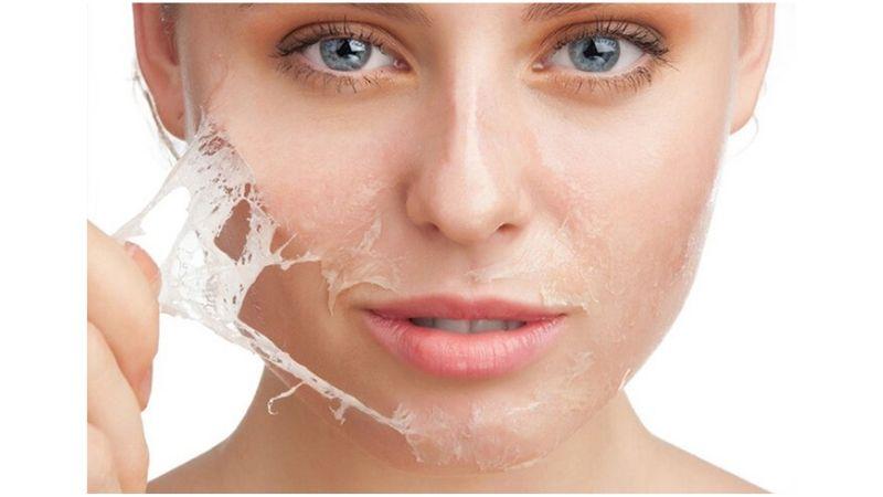 cara mengatasi kulit kering di wajah